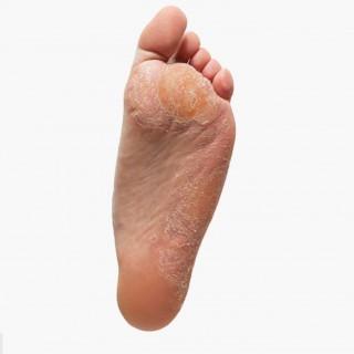 ayak tabanında deri sertleşmesi