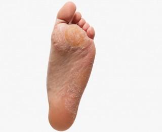 ayak tabanı deri sertleşmesi