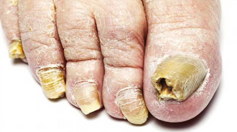 tırnak mantarı tedavisi