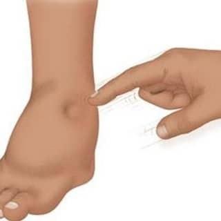 diyabet ayak bakımı
